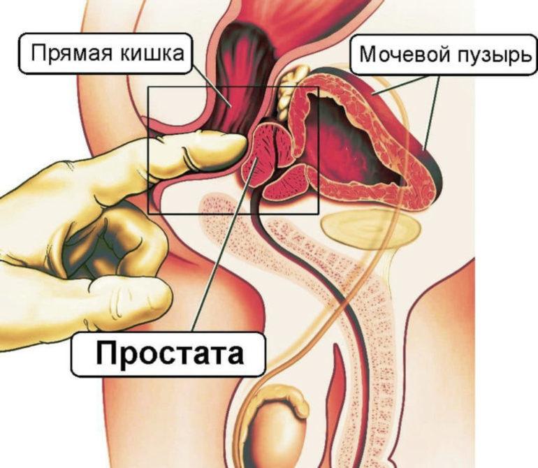 Секс при хроническом простатите 13