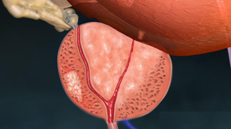 Как лечить воспаление у мужчин