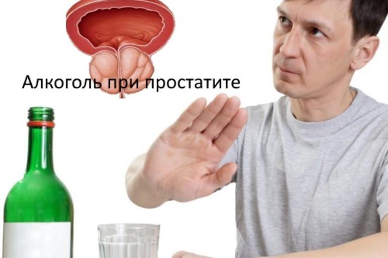 Простатит и алкоголь взаимосвязь