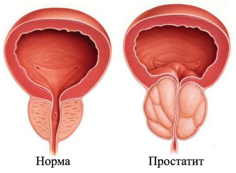 болит простата после алкоголя