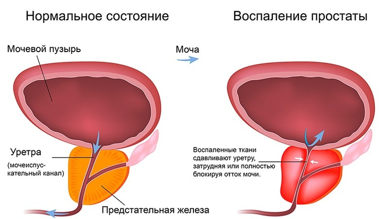 Формы простатита
