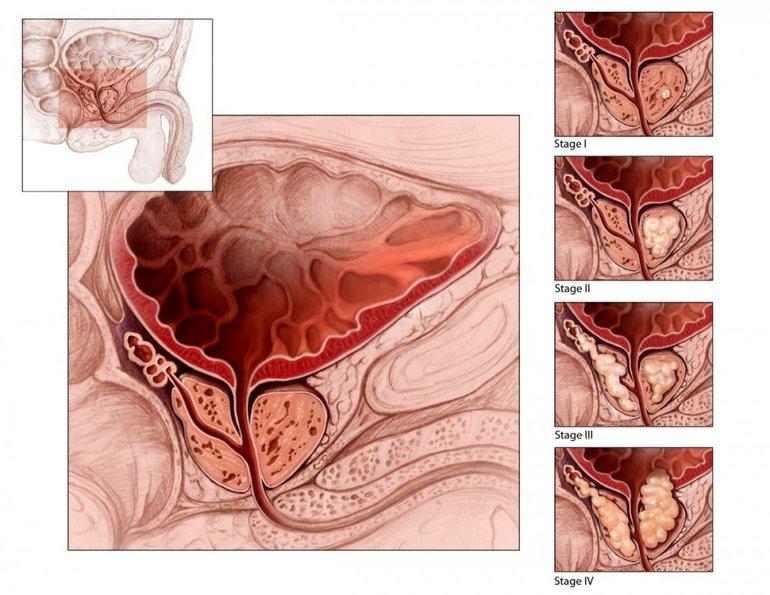 Что такое аденома простатит как можна лечить простатита