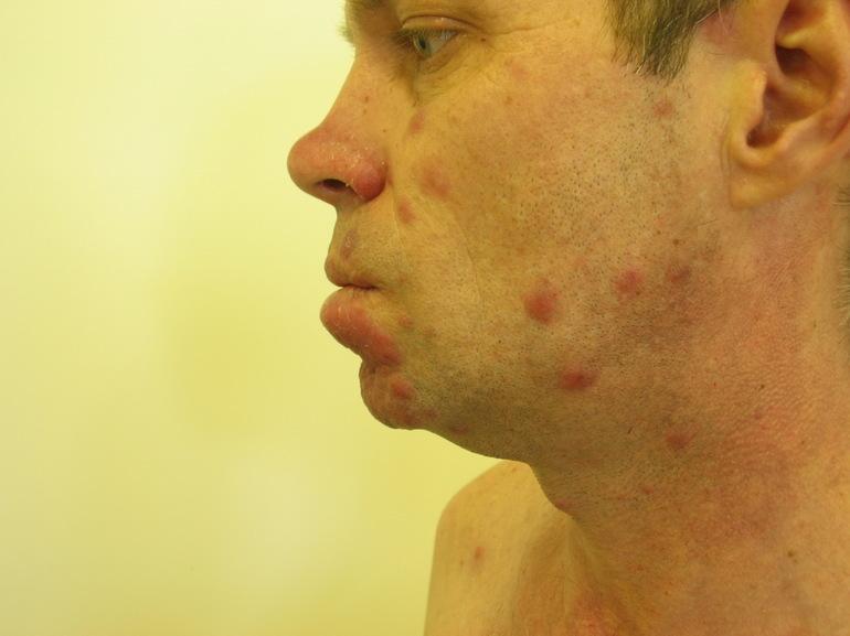 Заболевание сифилис
