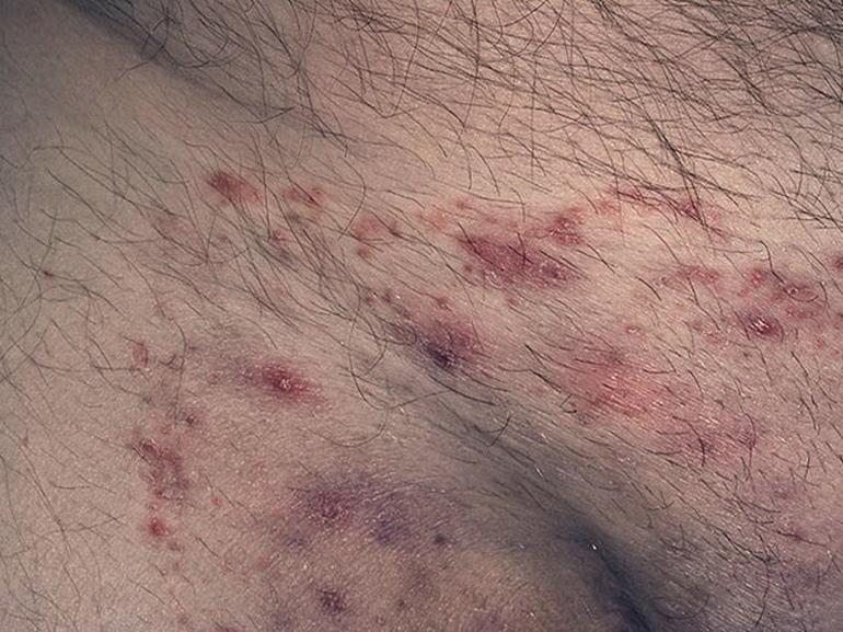 Устранение грибка в паху у мужчин таблетками