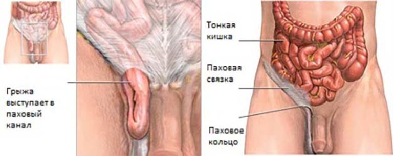 Паховая грыжа у мужчин симптомы