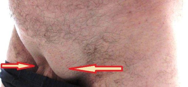 Увеличение лимфоузлов в паху у мужчин 37