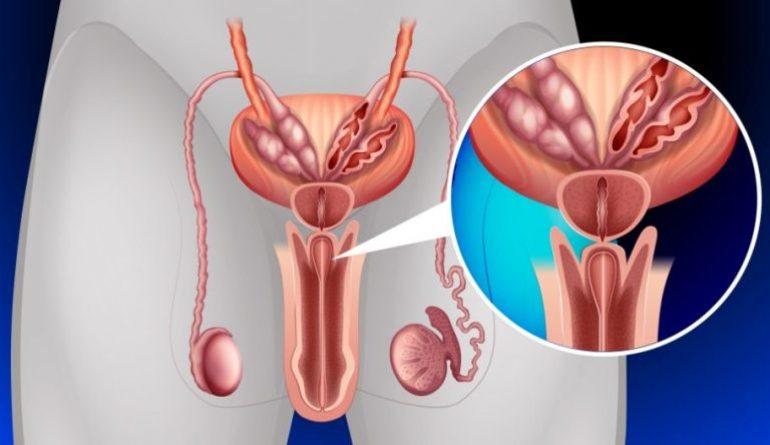 Воспалительные процессы в предстательной железе.