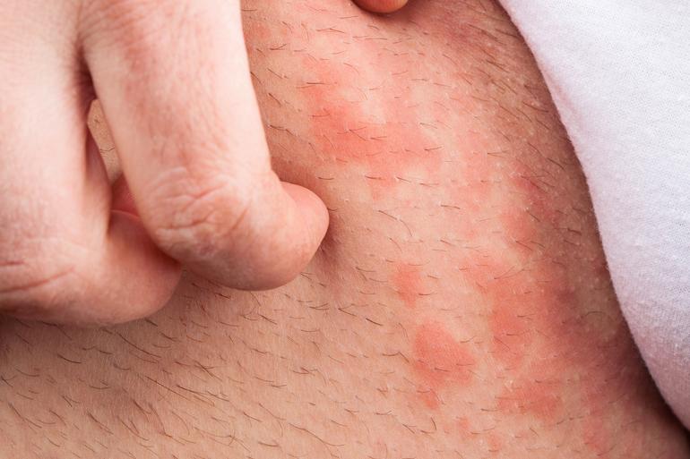Раздражение в паху у мужчин симптомы лечение