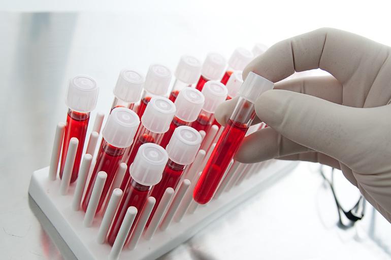 Сдача крови на анализ