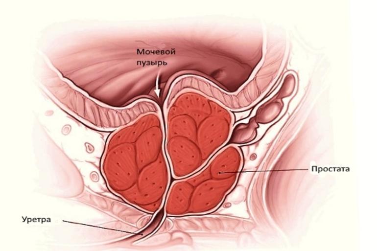 Что такое воспаление простатита гарднерелла простатит