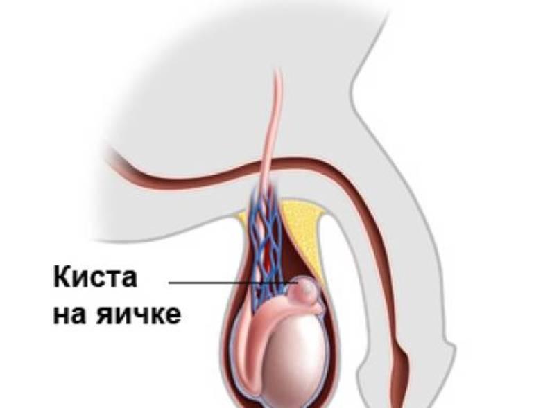 Диагностика заболевания у мужчин