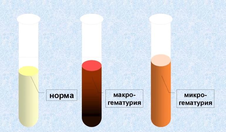 Макро- и микрогематурия.