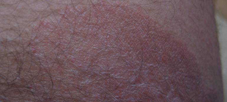Причины раздражения в паху у мужчин