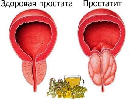 Воспаление простаты: симптомы и лечение у мужчин