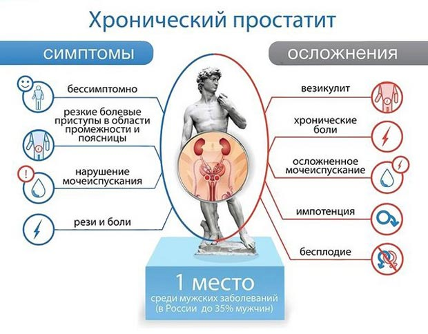 Симптомы хронического простатита