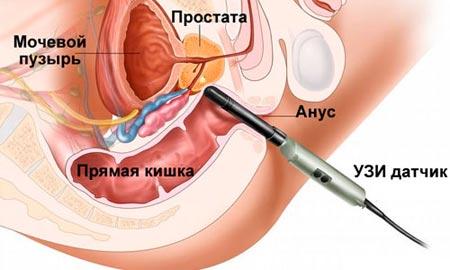 Схема ТРУЗИ предстательной железы