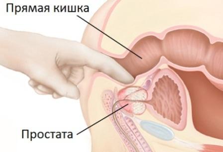 Прямая кишка и простата