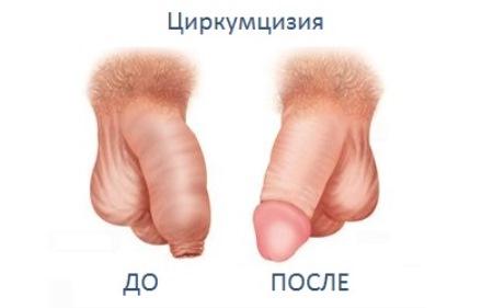 Обрезанный пенис член