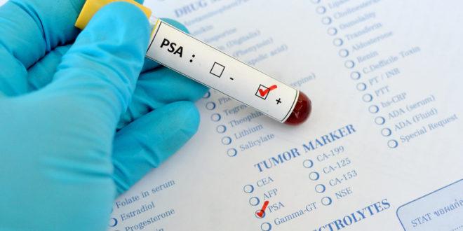 Анализ ПСА при простатите: какова норма анализа ПСА у мужчин при воспалении предстательной железы, как снизить уровень ПСА