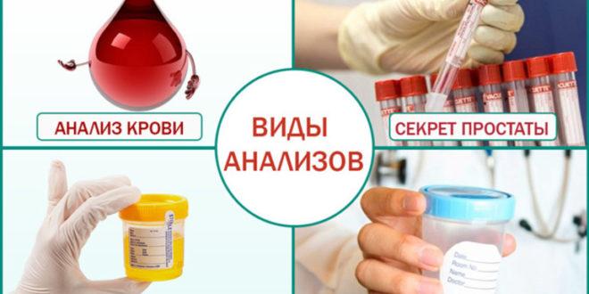 Анализ крови при простатите: показатели и нормы