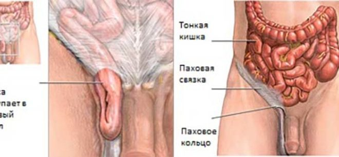 Паховая грыжа у мужчин: лечение без операции, симптомы и фото