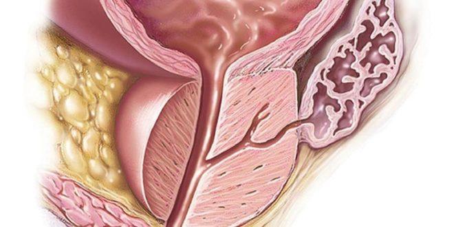 Вес предстательной железы