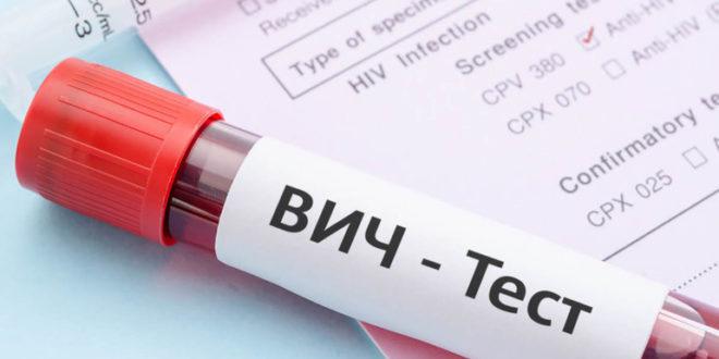Профилактика ВИЧ инфекции