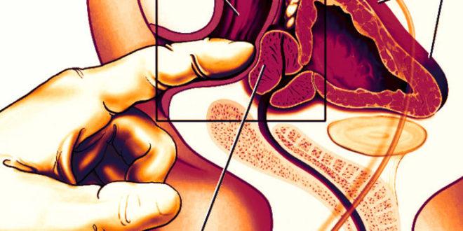 Наружный массаж простаты самостоятельно без проникновения: как делать, польза и противопоказания